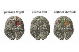 Images of brain noting electrode location, rest activity, and regret encoding.