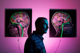 Portrait of UC Berkeley neuroscientist Michael Silver with images of brains in the background